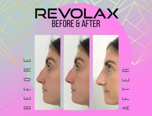 REVOLAX Before and After